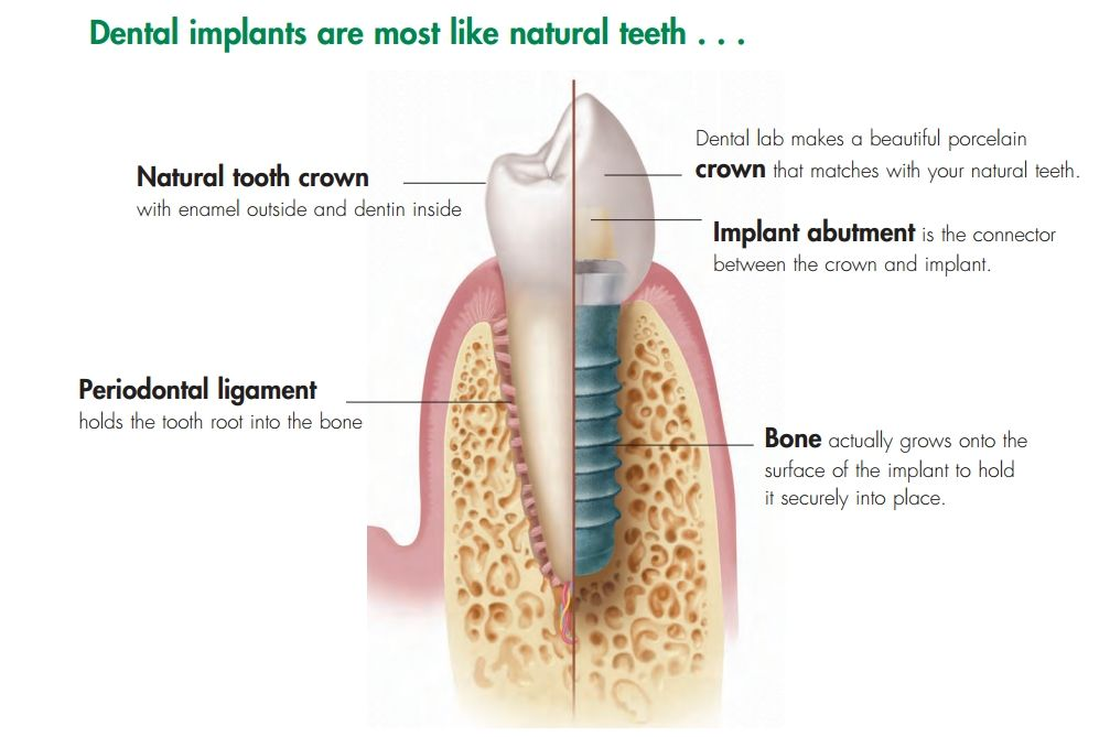 best dental implants hartford